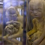 <b>Pathology:</b> The Musée Dupuytren is fascinating for its hundreds of examples of biology gone wrong, with preserved specimens like the corpse of conjoined infant twins and what appears to be the head of person suffering from cyclopedia (single-eye disorder). But there are hundreds of exhibits and frankly it can be tough to look at it all if you aren't a battle-hardened fan of deformities. It's located on the Rue de l'Ecole de Médecine in the 6th arrondissement.Photo: Ollografik/Flickr