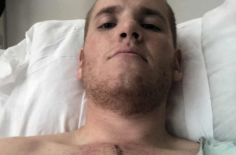 French train hero left with massive scar