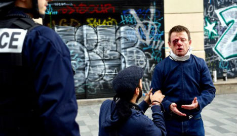 French union activist to sue police for burst eyeball