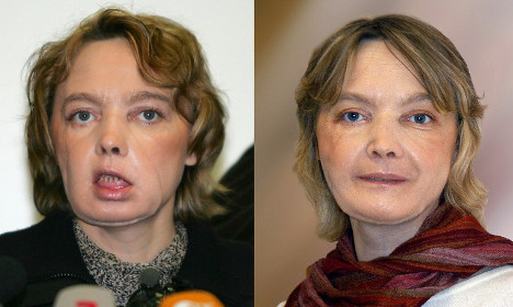 French woman given world's first face transplant dies