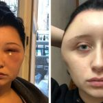 'I almost died': Young French woman disfigured by hair dye