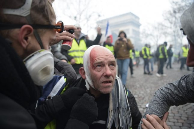 French police blasted for maiming 'yellow vests' with tear gas and rubber bullets