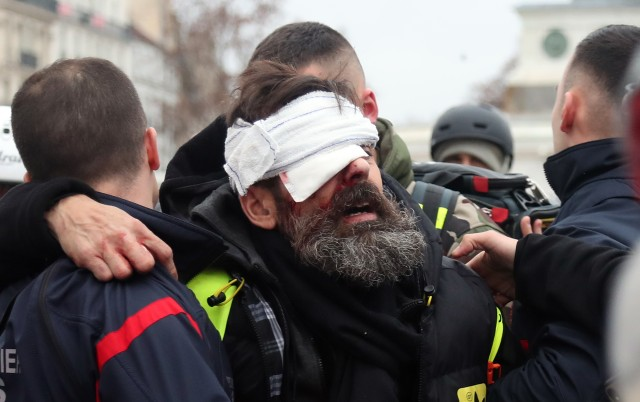 OPINION: France's 'yellow vest' conflict is heading into calamitous new territory